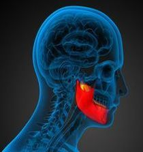 圖片:頭部前傾,頭部和下巴前伸,失去正常頸曲線